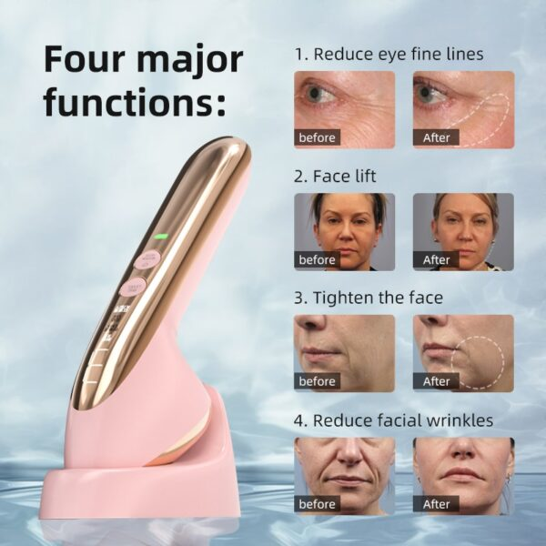 KONKA mini portable Skin Care Device Face Electroporation RF Radio Frequency Skin Care Face Massager EMS Mesotherapy LED Photon